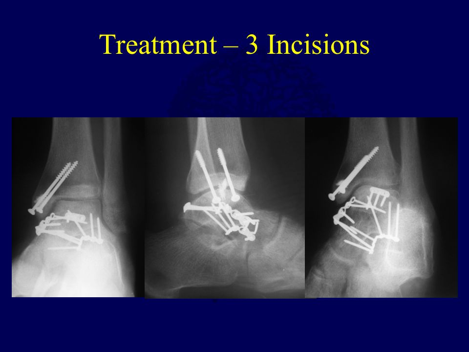 Treatment – 3 Incisions