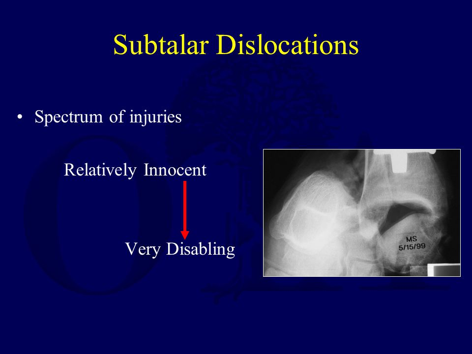 Subtalar Dislocations