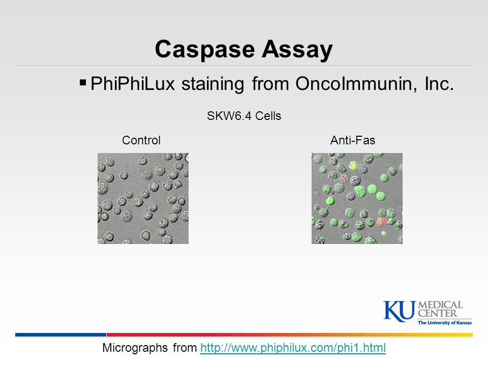 Micrographs from http://www.phiphilux.com/phi1.html