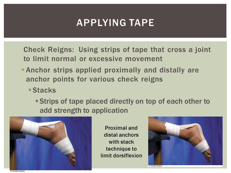 Proximal and distal anchors with stack technique to limit dorsiflexion