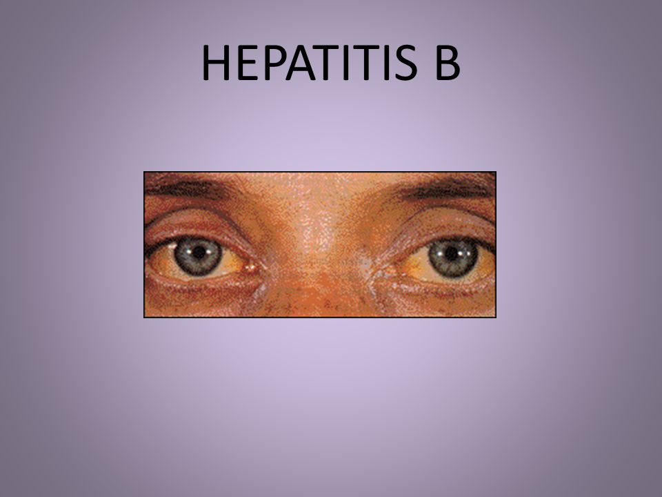 HEPATITIS B This slide and this particular STD is not as much of a concern but very contagious and deadly.