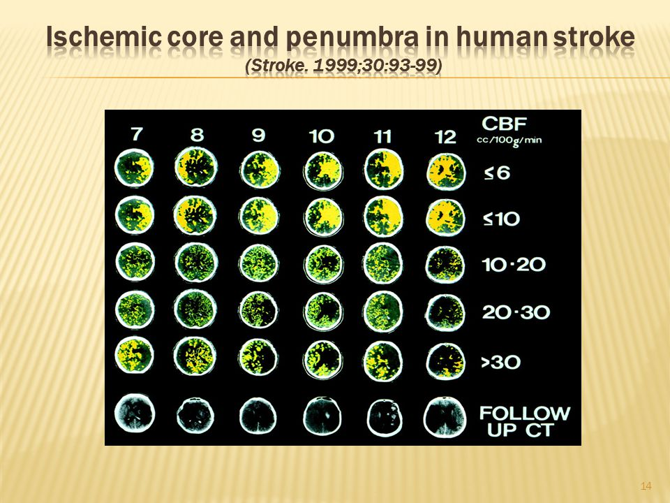 Ischemic core and penumbra in human stroke (Stroke. 1999;30:93-99)