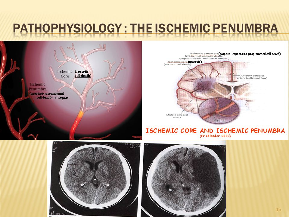 Pathophysiology : The Ischemic Penumbra