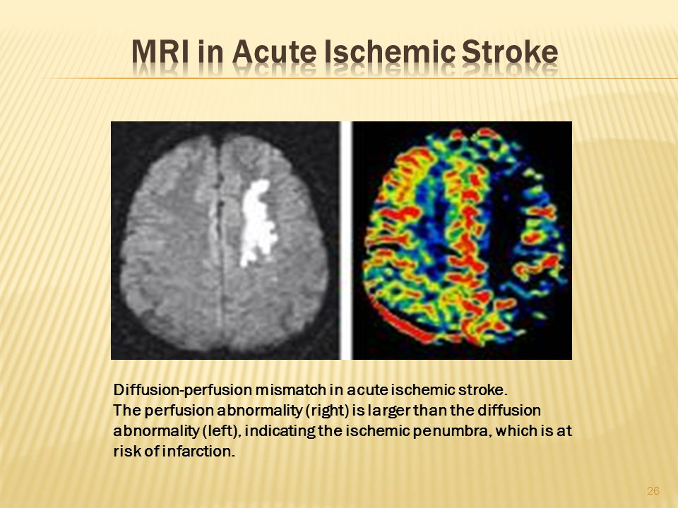 MRI in Acute Ischemic Stroke