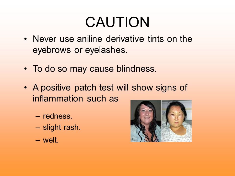 CAUTION Never use aniline derivative tints on the eyebrows or eyelashes. To do so may cause blindness.