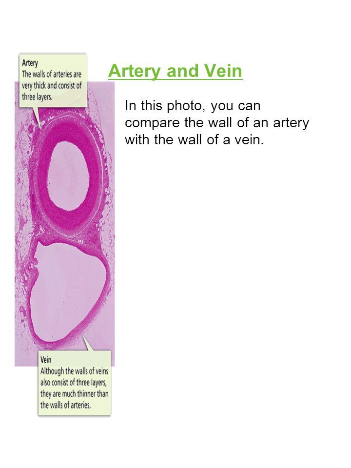 Artery and Vein In this photo, you can compare the wall of an artery with the wall of a vein.