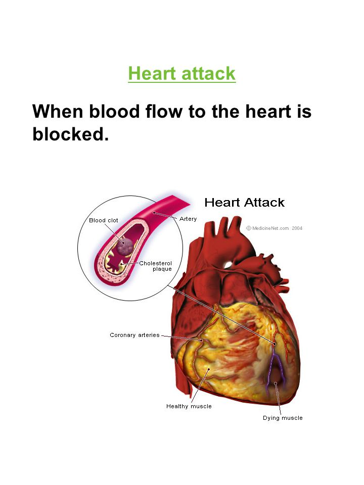 Heart attack When blood flow to the heart is blocked.