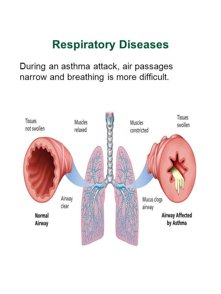 Respiratory Diseases During an asthma attack, air passages narrow and breathing is more difficult.