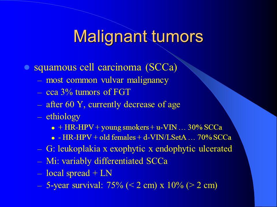 Malignant tumors squamous cell carcinoma (SCCa)