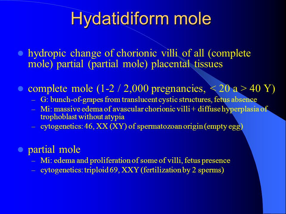 Hydatidiform mole hydropic change of chorionic villi of all (complete mole) partial (partial mole) placental tissues.
