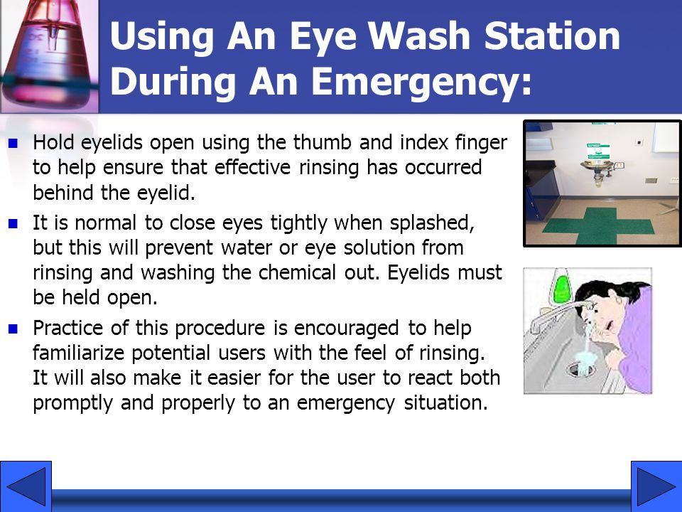 Using An Eye Wash Station During An Emergency: