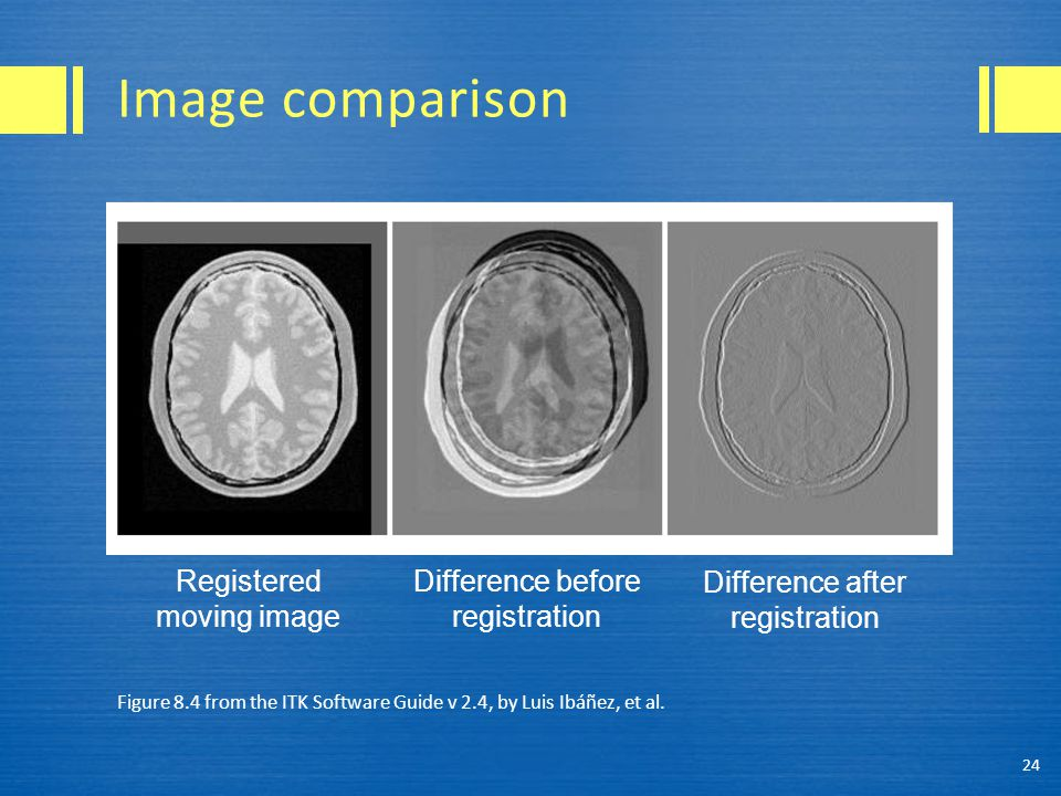 Image comparison Registered moving image Difference before