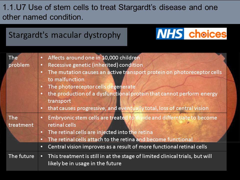 Stargardt s macular dystrophy