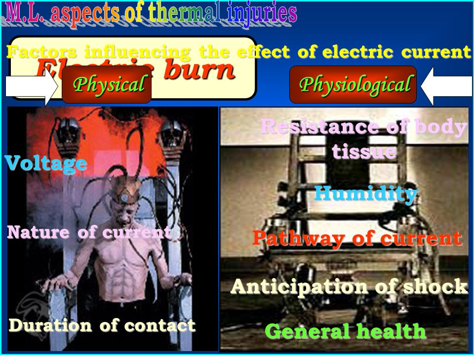 Electric burn Physical Physiological Resistance of body tissue Voltage