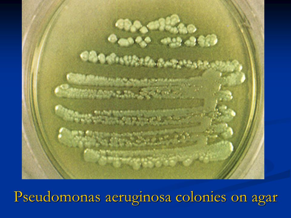 Pseudomonas aeruginosa colonies on agar