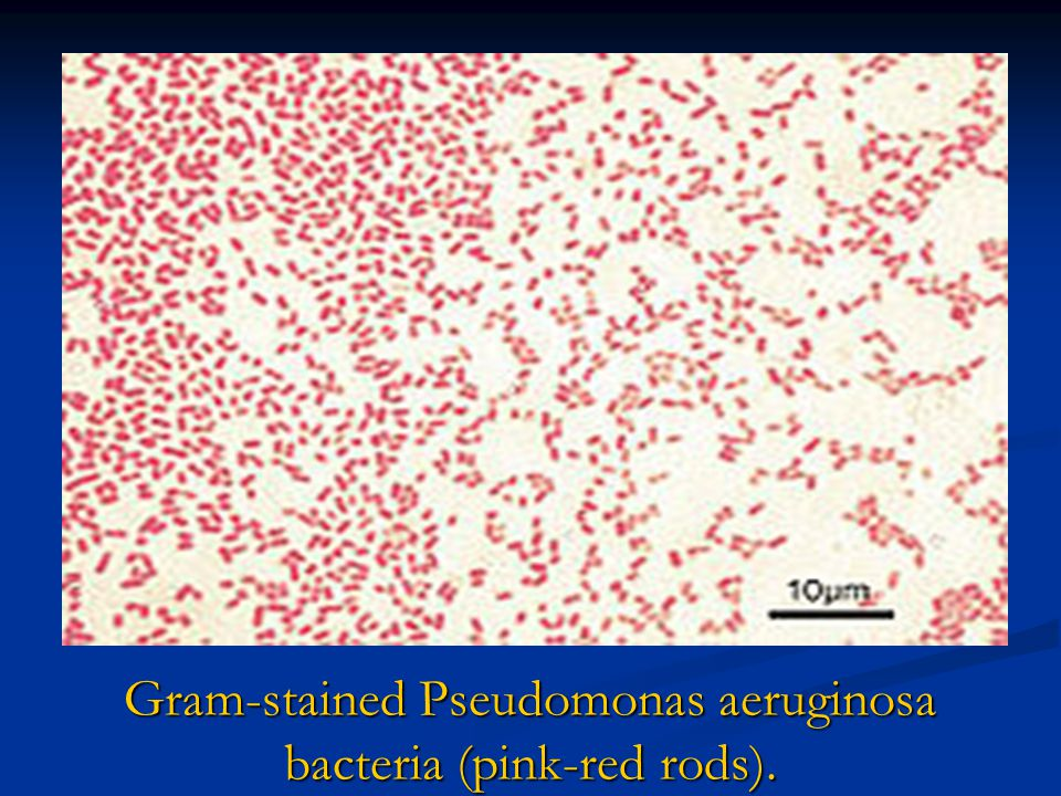 Gram-stained Pseudomonas aeruginosa bacteria (pink-red rods).