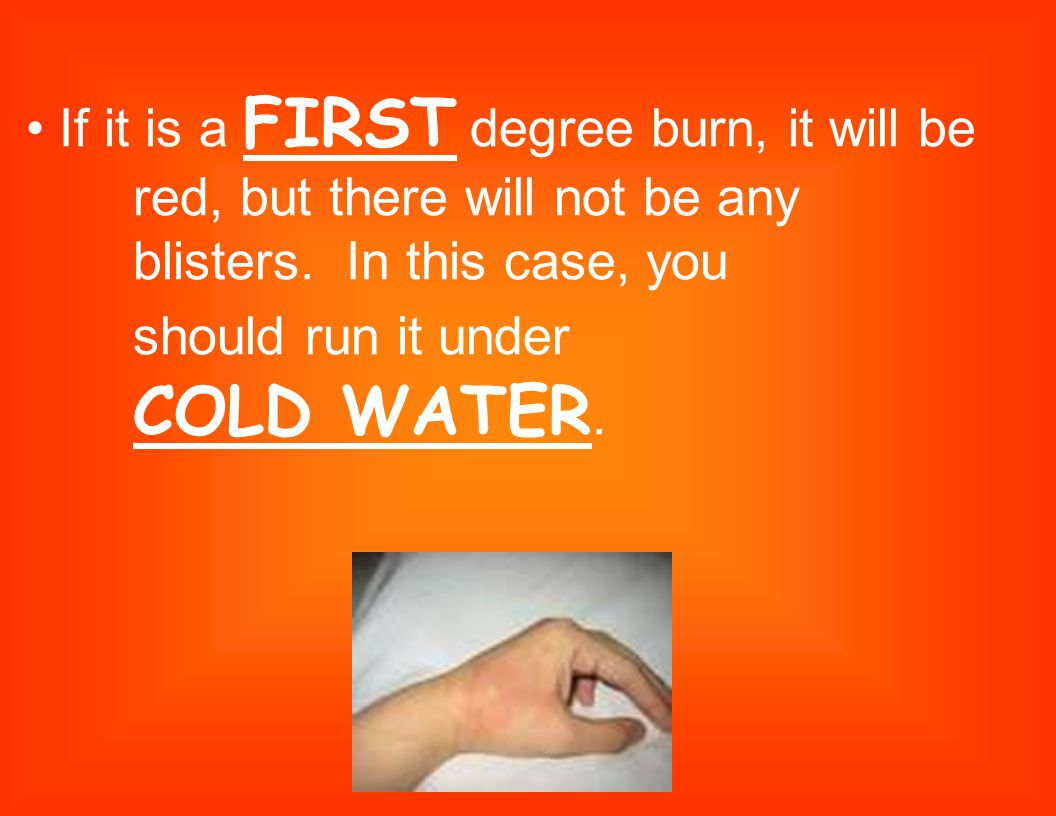 • If it is a FIRST degree burn, it will be