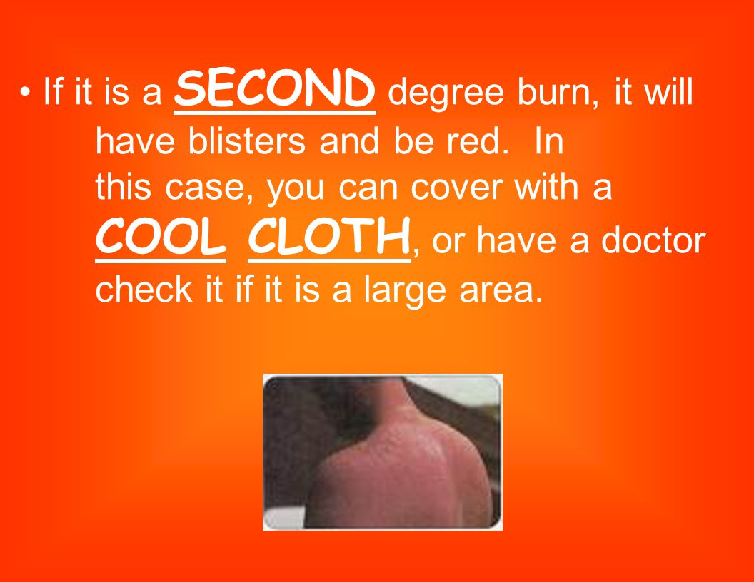 • If it is a SECOND degree burn, it will. have blisters and be red. In