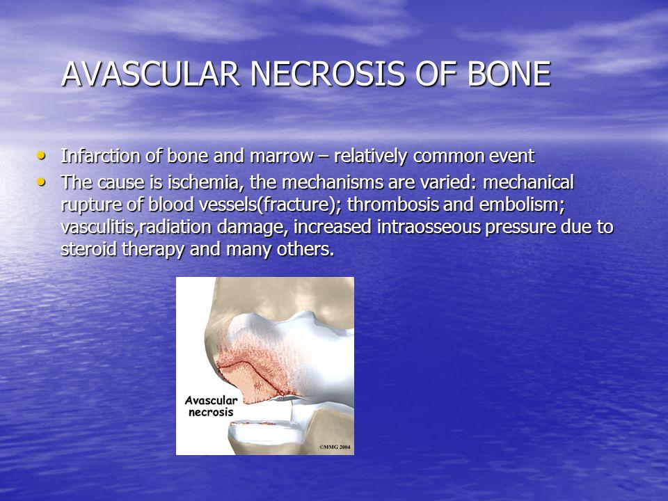 AVASCULAR NECROSIS OF BONE