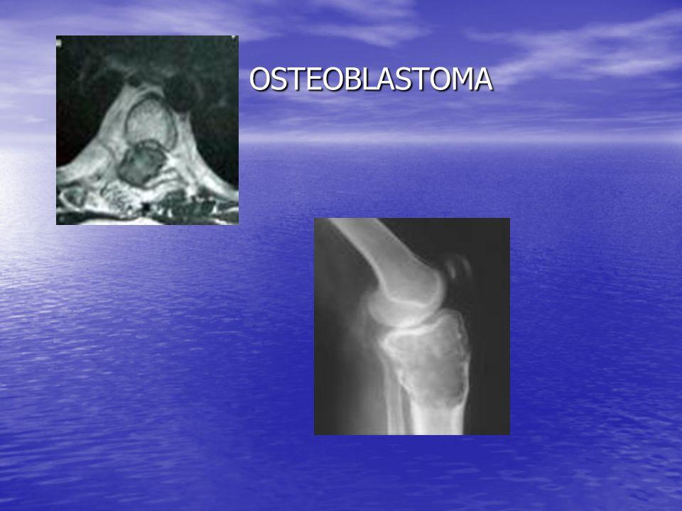 OSTEOBLASTOMA