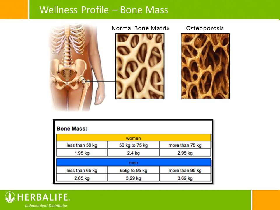 Wellness Profile – Bone Mass