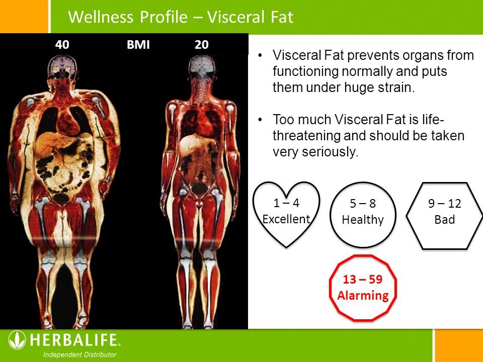 Wellness Profile – Visceral Fat