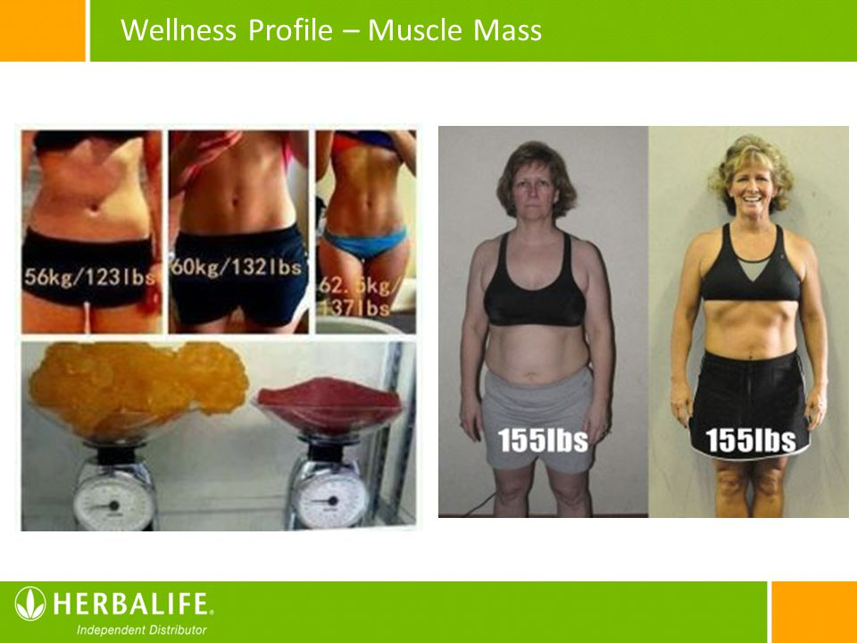 Wellness Profile – Muscle Mass