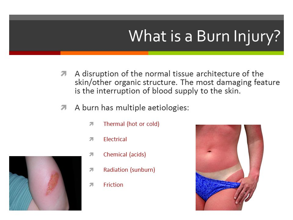 What is a Burn Injury