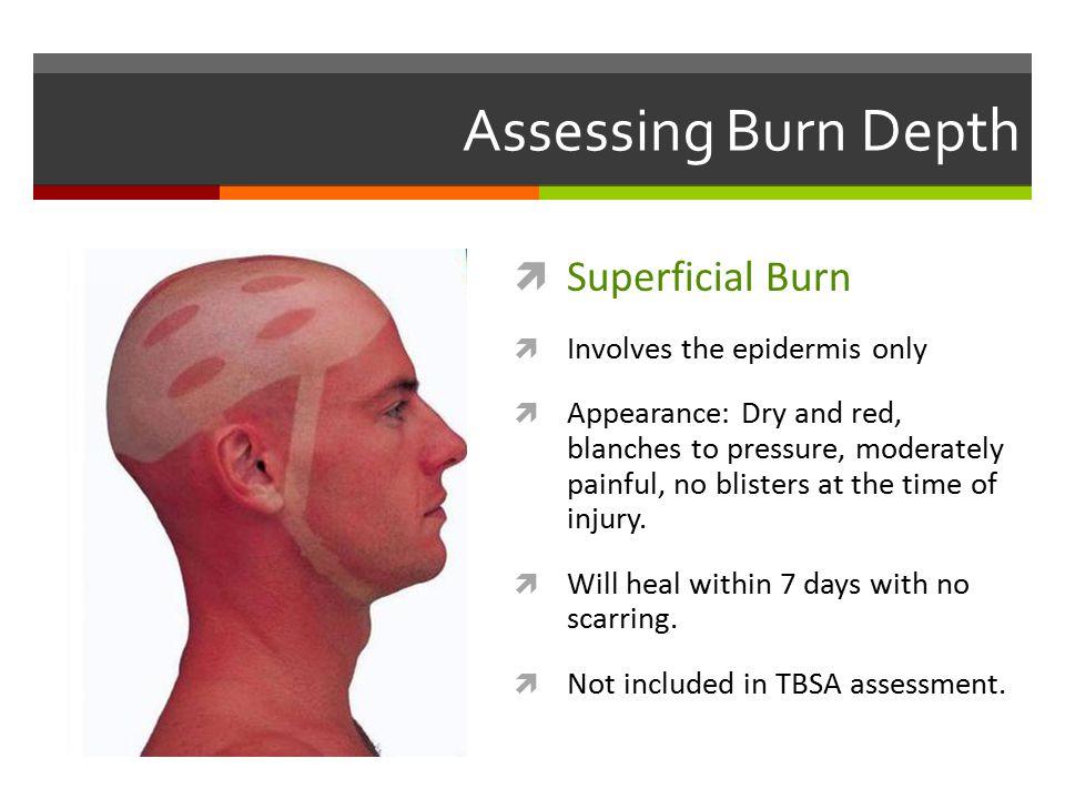 Assessing Burn Depth Superficial Burn Involves the epidermis only