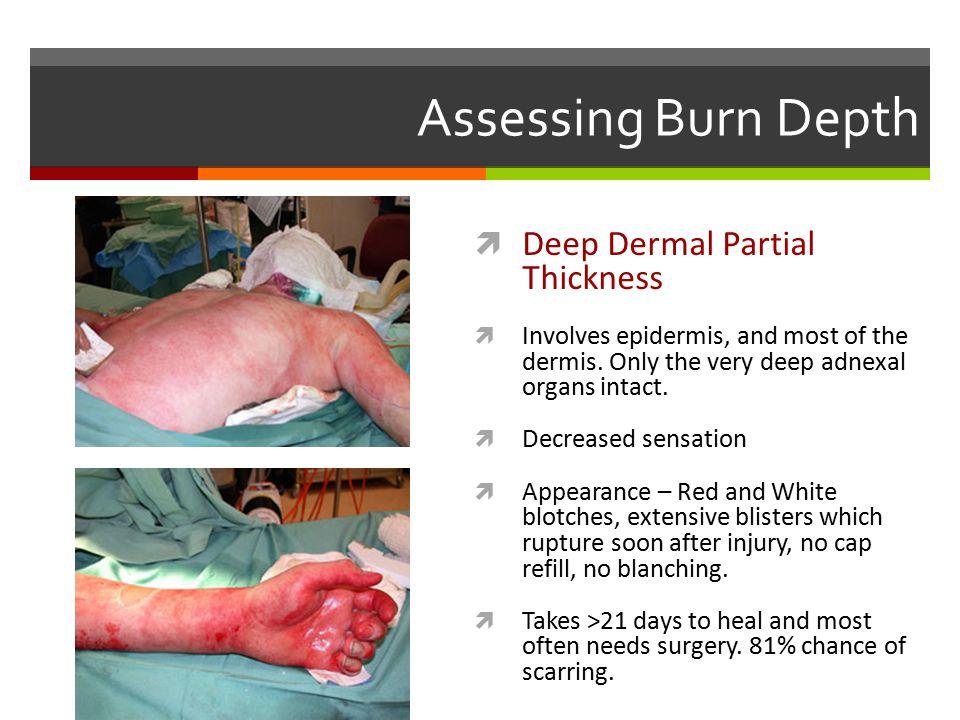 Assessing Burn Depth Deep Dermal Partial Thickness