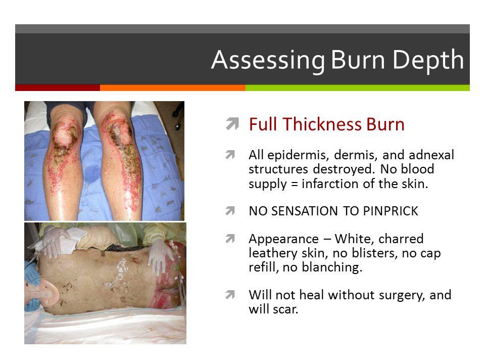 Assessing Burn Depth Full Thickness Burn