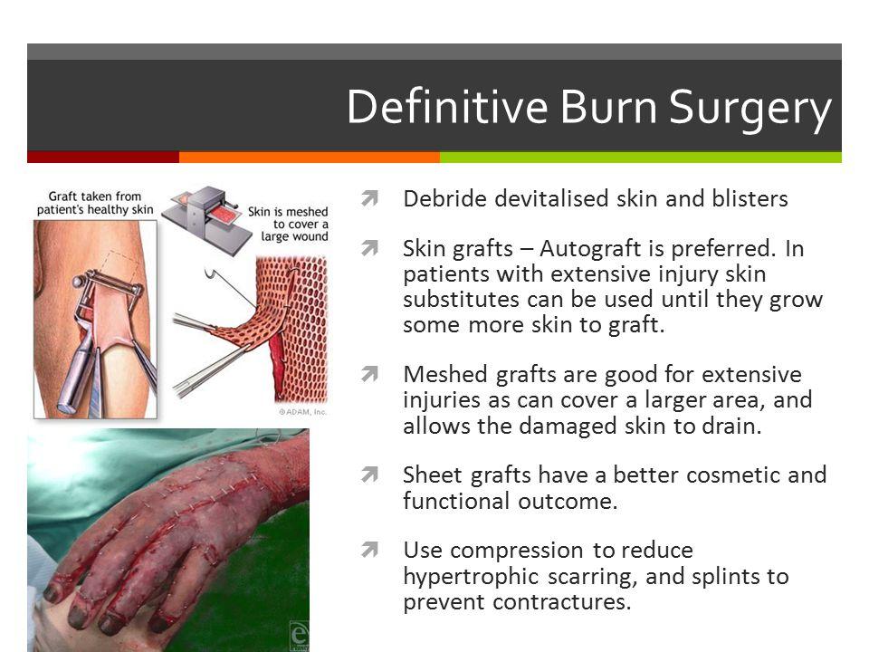 Definitive Burn Surgery