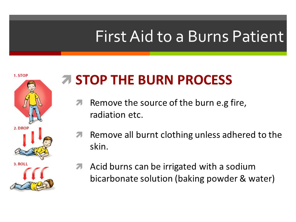 First Aid to a Burns Patient
