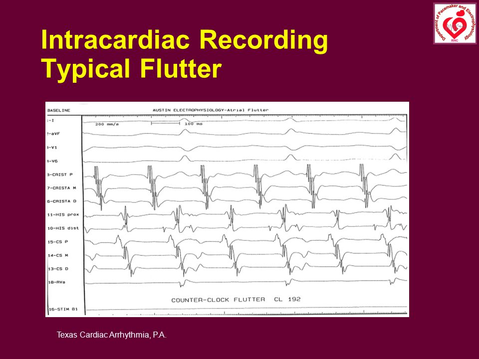 Intracardiac Recording Typical Flutter