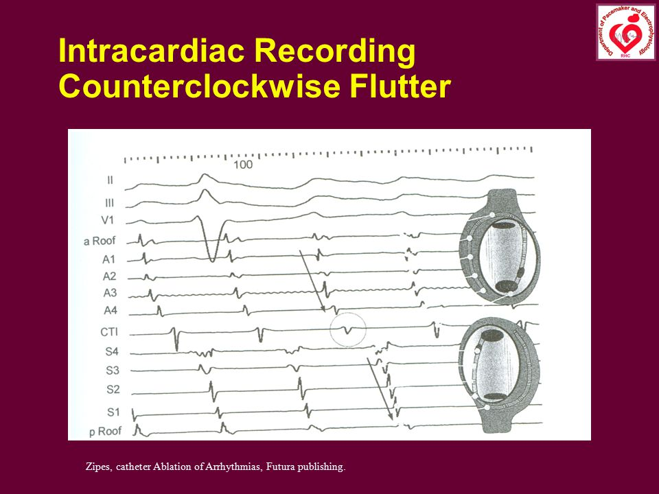 Intracardiac Recording Counterclockwise Flutter