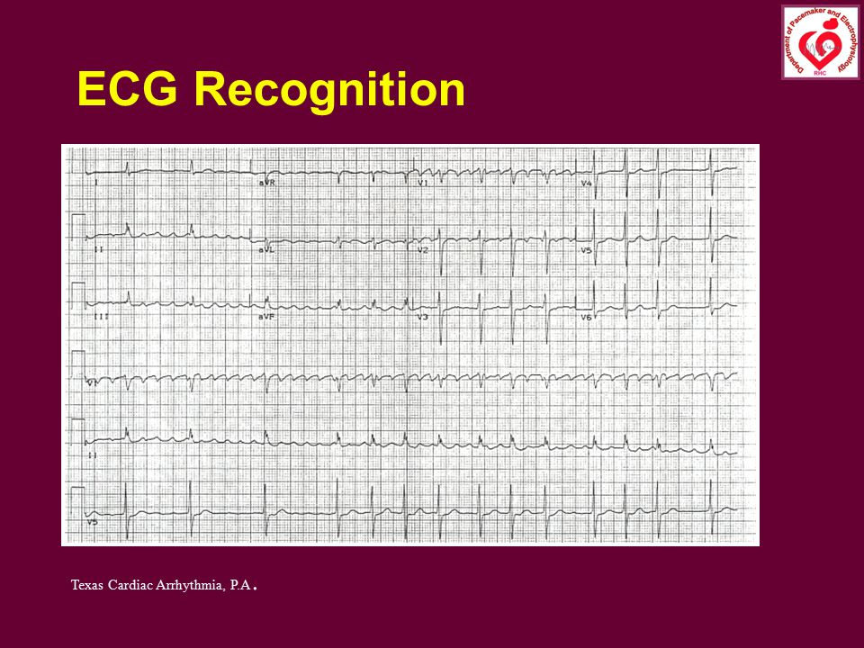 ECG Recognition Texas Cardiac Arrhythmia, P.A.