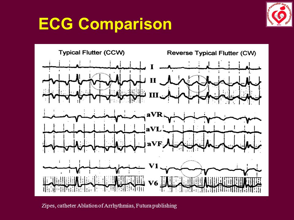 ECG Comparison Counterclockwise Clockwise