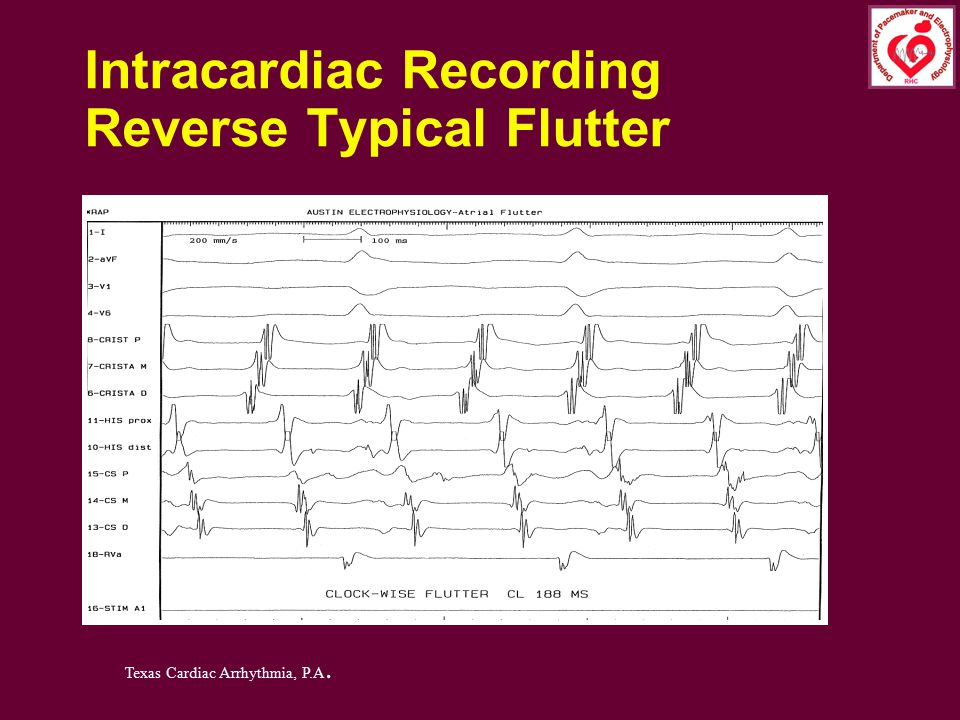 Intracardiac Recording Reverse Typical Flutter