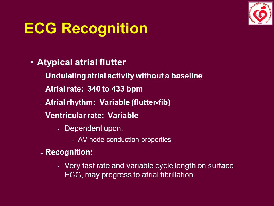 ECG Recognition Atypical atrial flutter