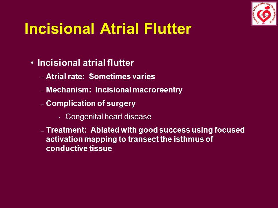 Incisional Atrial Flutter