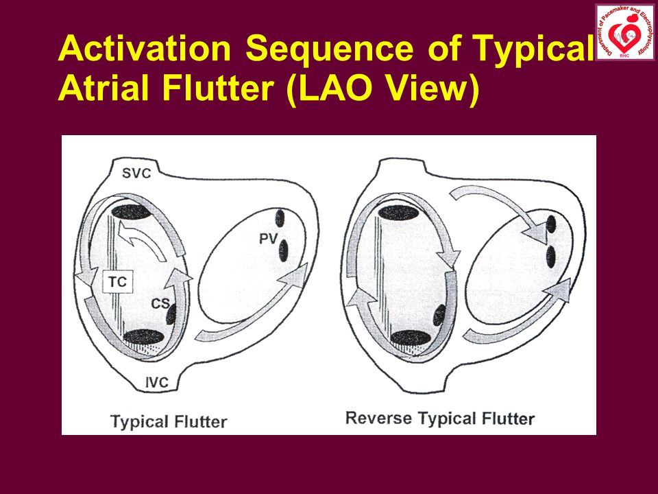 Activation Sequence of Typical Atrial Flutter (LAO View)