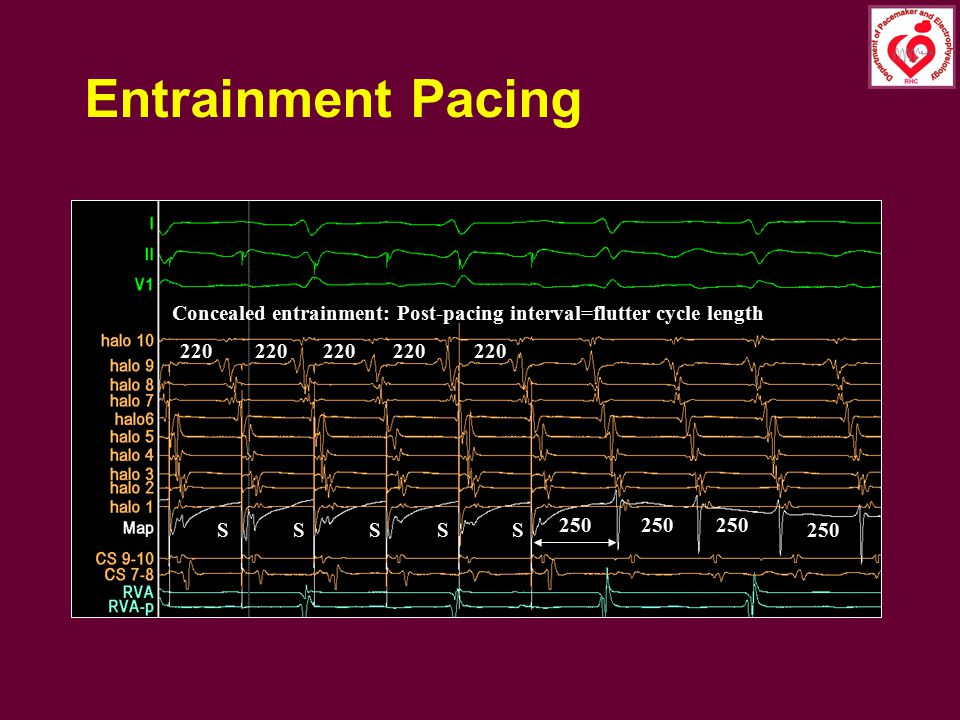 Entrainment Pacing Concealed entrainment: Post-pacing interval=flutter cycle length. 220. 220. 220.