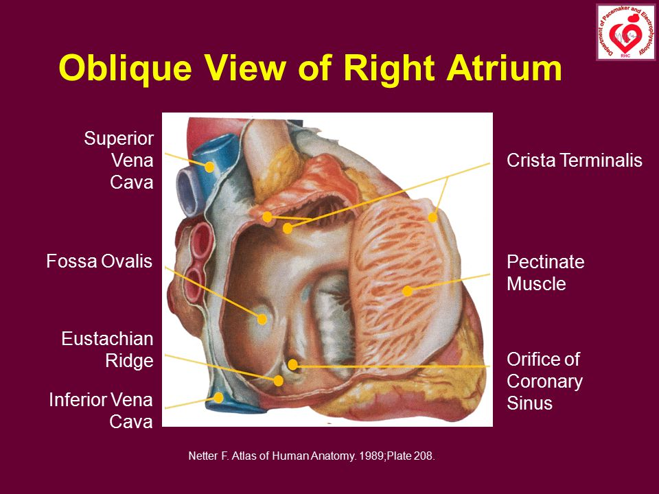 Oblique View of Right Atrium