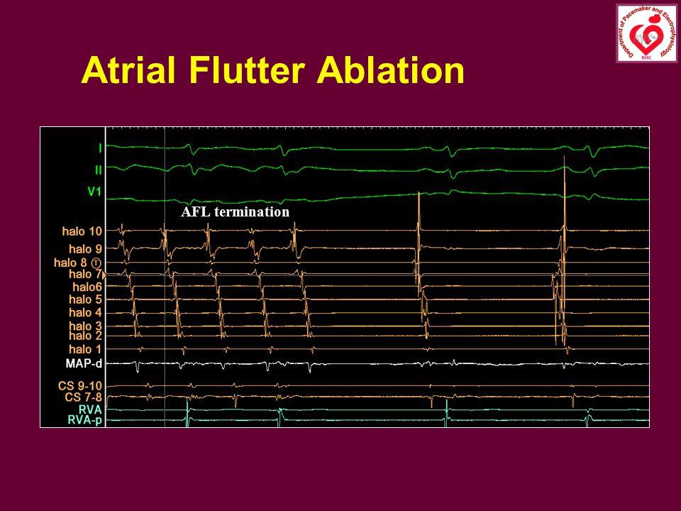 Atrial Flutter Ablation
