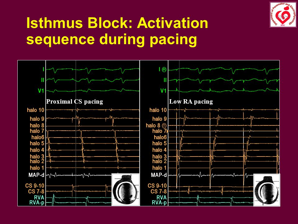Isthmus Block: Activation sequence during pacing
