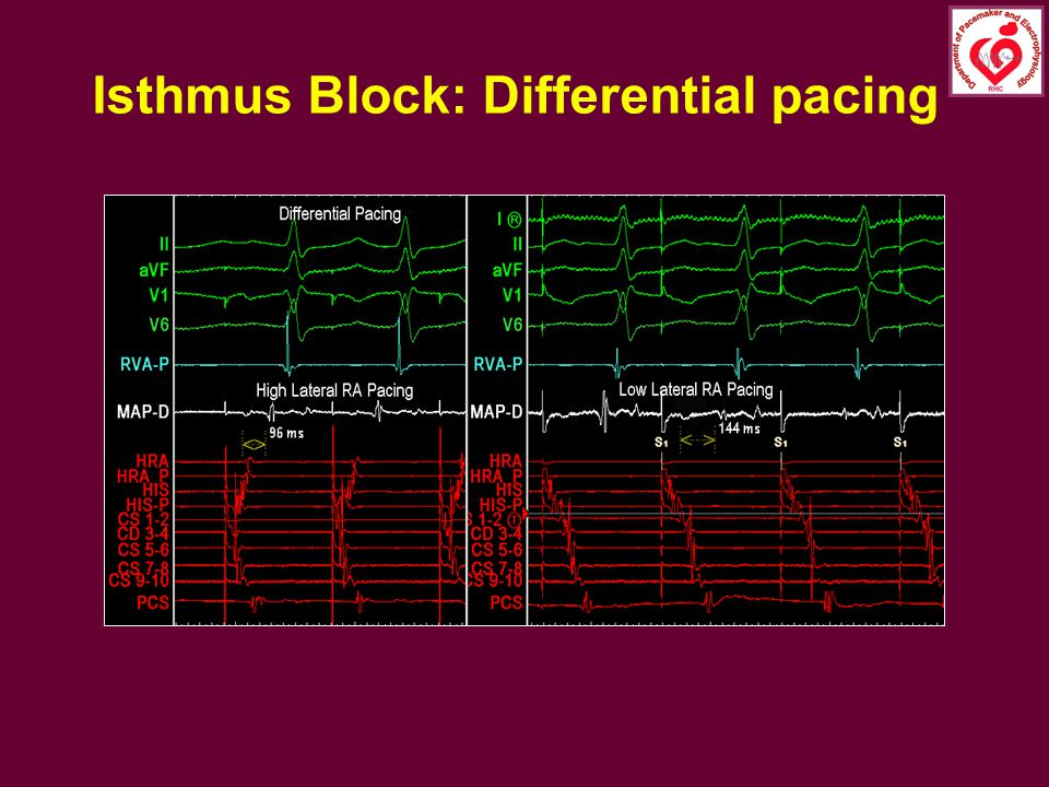 Isthmus Block: Differential pacing