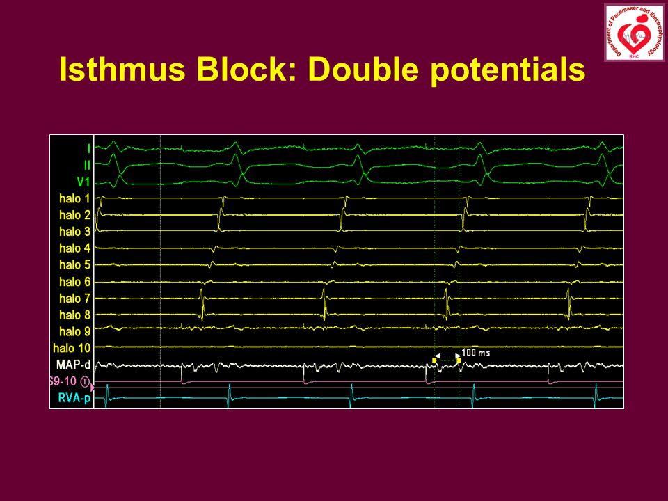 Isthmus Block: Double potentials