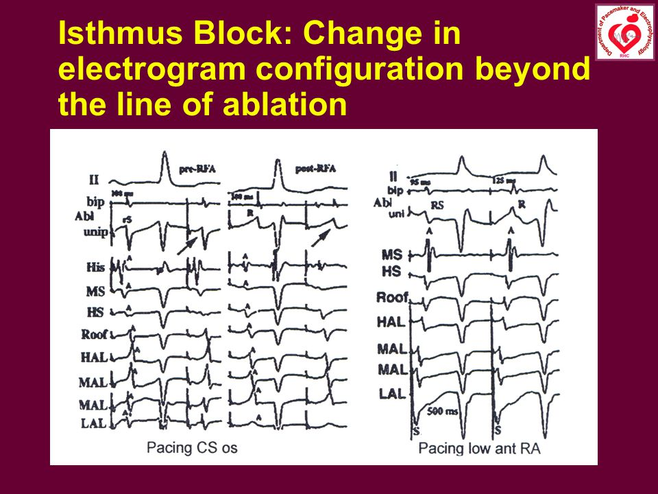 Isthmus Block: Change in electrogram configuration beyond the line of ablation