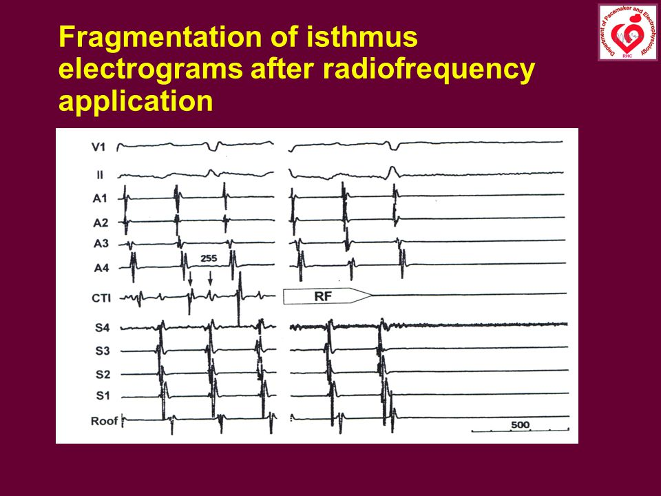 Fragmentation of isthmus electrograms after radiofrequency application