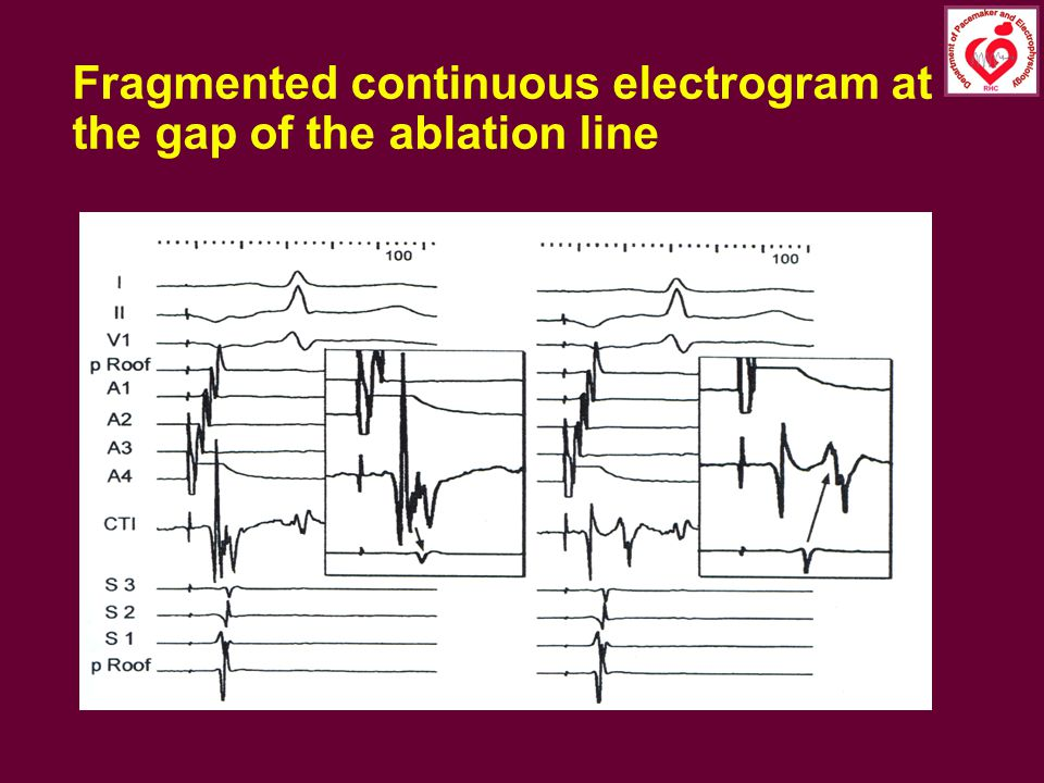 Fragmented continuous electrogram at the gap of the ablation line